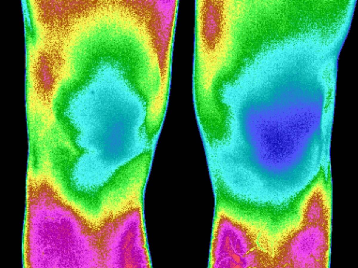格物优信红外热像仪在医学领域的应用
