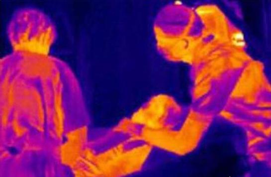 红外热像仪医用的优点